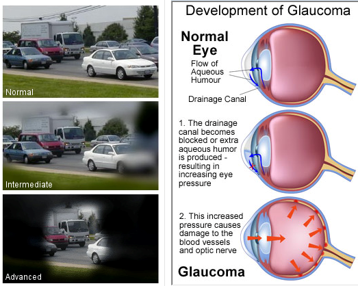 Image result for Glaucoma: A Vision Loss